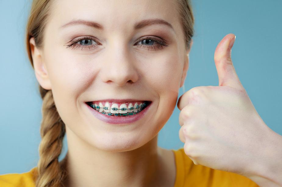 Nasmeh punce z ortodontskim aparatom