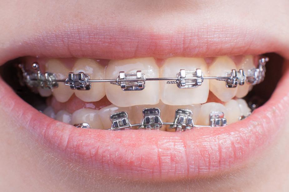 Približan nasmeh ortodontski aparat